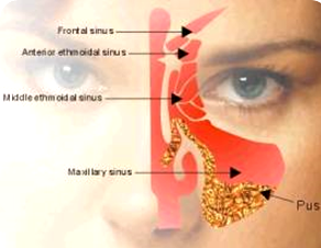homeopathy for sinusitis